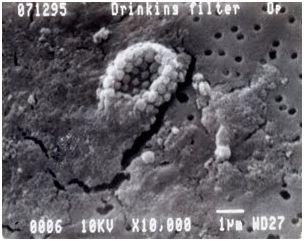 бактерии на мембране